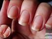 Nail Cuticle remover